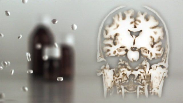 Graphic of brain and pills