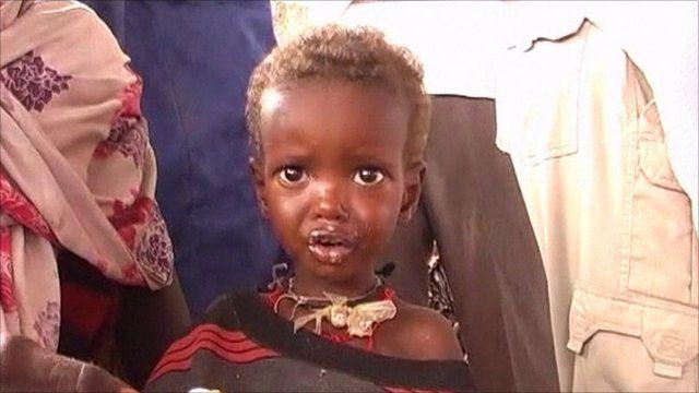 child in Somalia