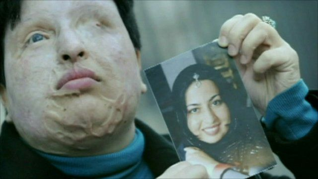 Ameneh Bahrami holding a photo of herself before the acid attack