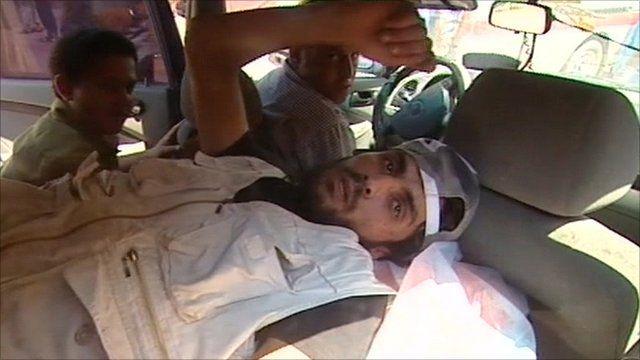 Injured rebel fighter