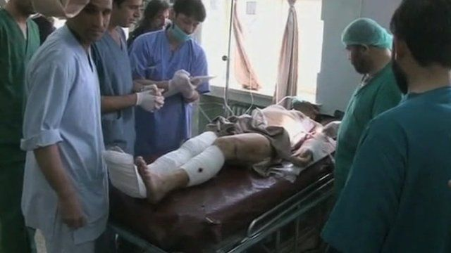 Injured person treated in hospital