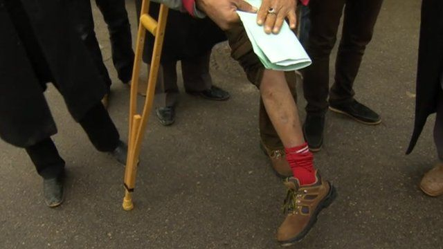 A wounded Libyan