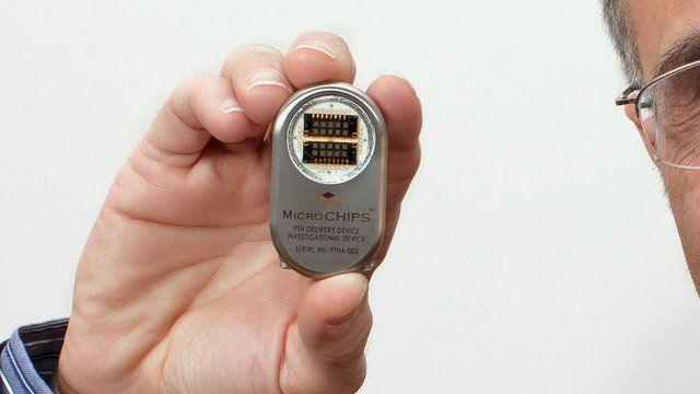 Microchip implant device