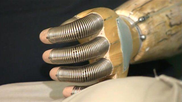 Tim Madison's arm