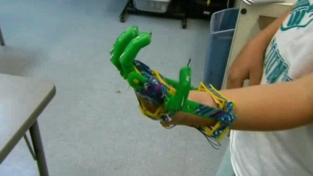 A boy with a 3D printed hand