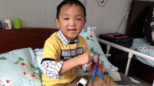 Chinese boy Guo Bin after he was fitted with prosthetic eyes, 22 November 2013