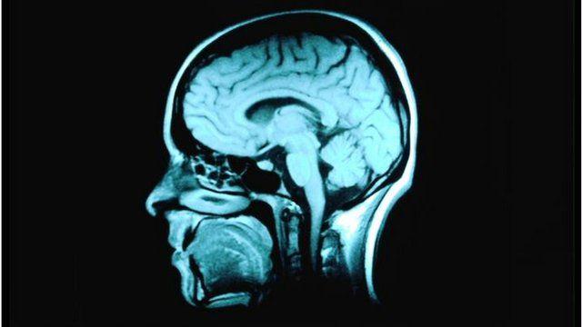 MRI scan of a normal human brain
