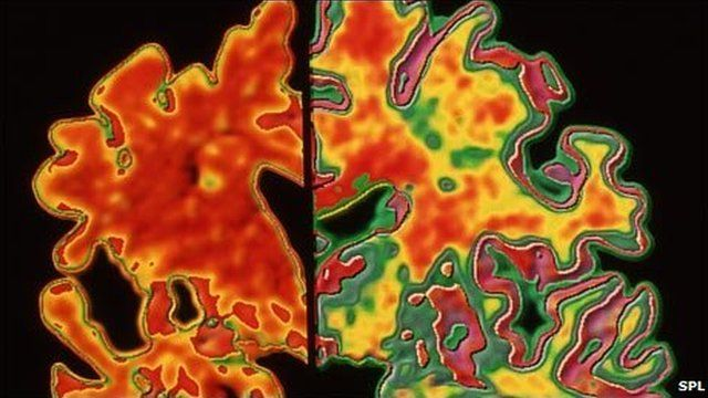 Alzheimer's brain (left) compared with healthy brain (right)