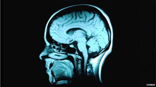 MRI scan Magnetic Resonance Imaging scan of the head brain