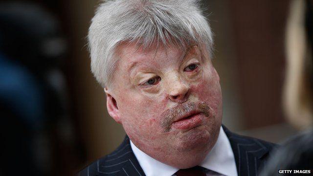Falklands veteran Simon Weston