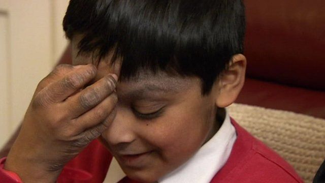 Tahmid Ahmed is taking part in a trial to see if silk clothing will relieve itching caused by eczema