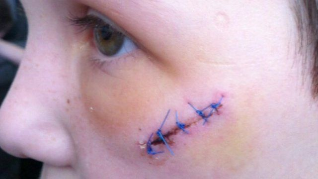 Kenny Smith's cheek injury