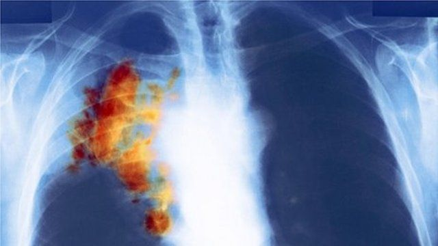 Lung cancer seen in colour X-ray