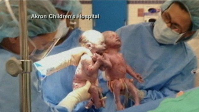 Babies holding hands after birth