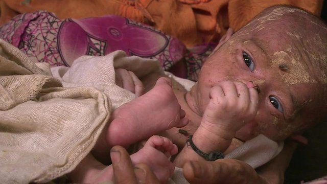 Baby in Rakhine state Myanmar