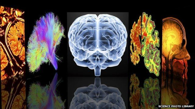 Conceptual computer artwork depicting neurology