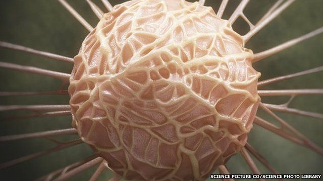 breast cancer in england 2018-06-07 british breast cancer victims over the age of 70 face far worse survival rates than those elsewhere, new research shows.