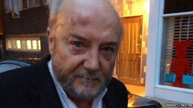 Photograph released by Respect of MP George Galloway with bruises before he went to hospital