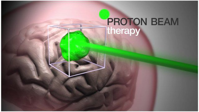 Graphic illustrating how proton beam therapy works