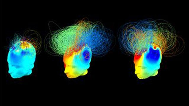 EEG scans