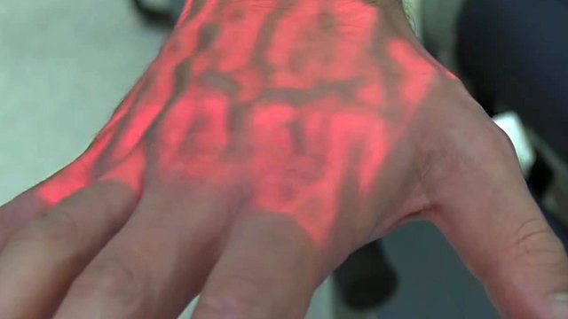 A hand is lit up under vein detecting device