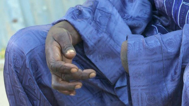 Man whose hand was cut off by Boko Haram