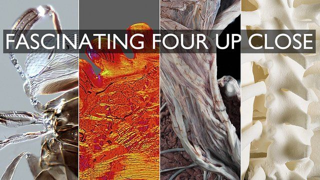 Four finalists in the Wellcome Image Awards 2015