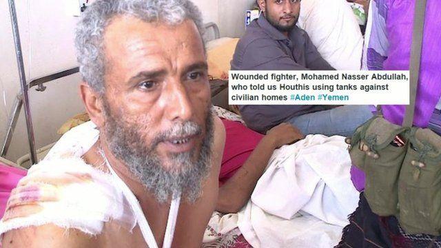 Injured fighter in Yemen