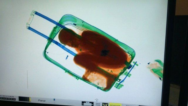 Scanner image showing the boy inside the case