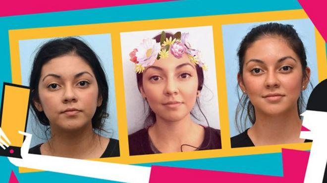 Jovens fazem cirurgias plásticas para ficar parecidos com suas selfies com filtro
