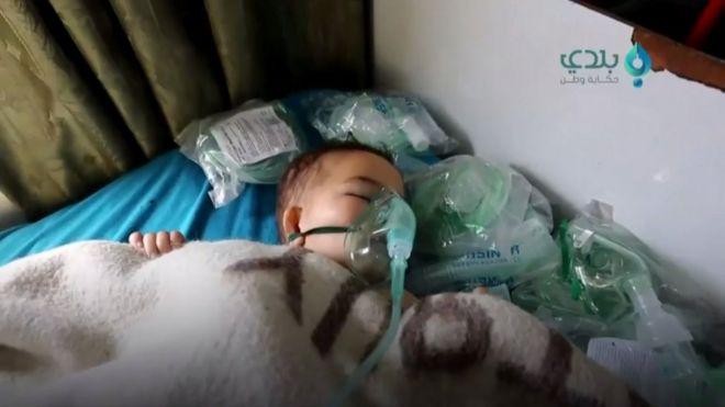 Bebê sírio após ataque