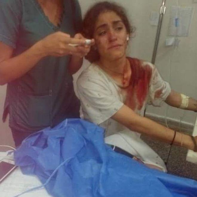 Carmen Ángel en el hospital.