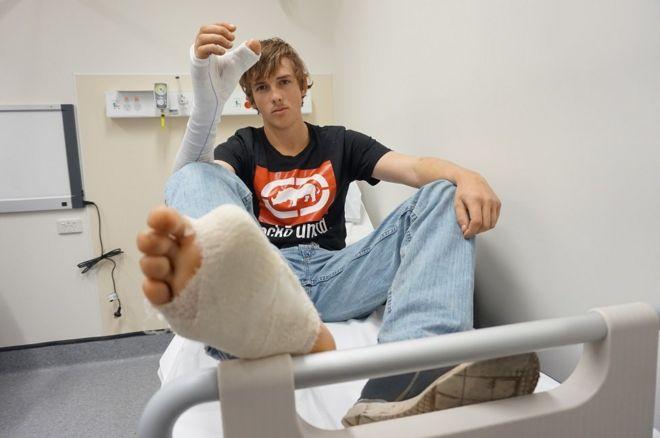 Zac Mitchell com bandagens no pé e na mão