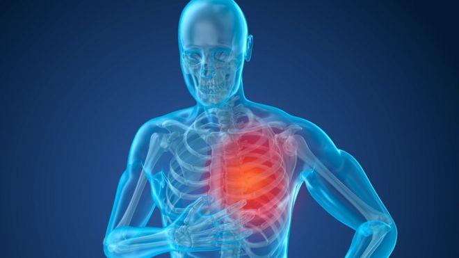 Qué es la hipertensión arterial pulmonar
