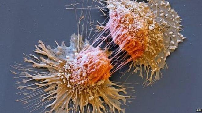 Célula cancerígena dividiéndose