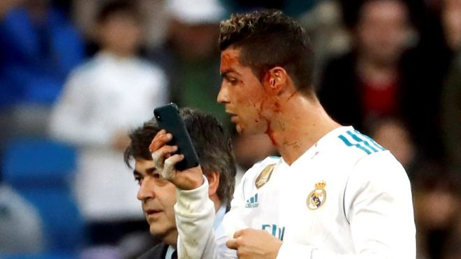 Image result for Ronaldo Borrows Doctor's Phone To Check Facial Injury On Pitch