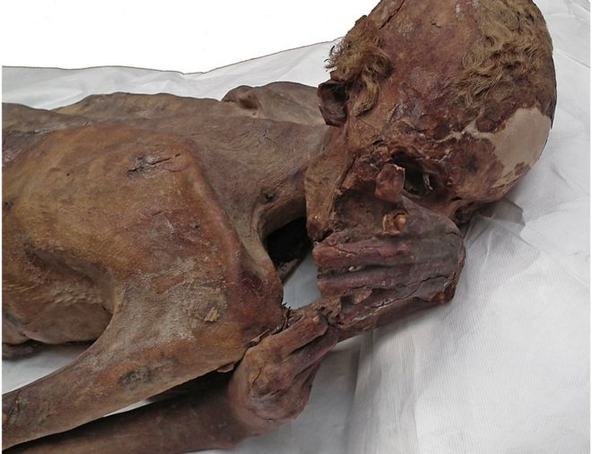 Male Mummy