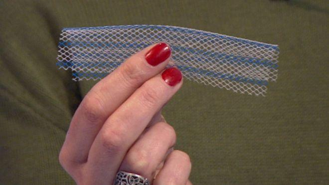 Vaginal mesh
