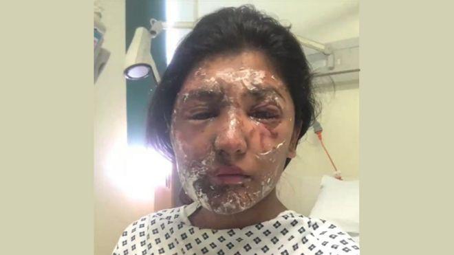 Resham Khan with facial burns