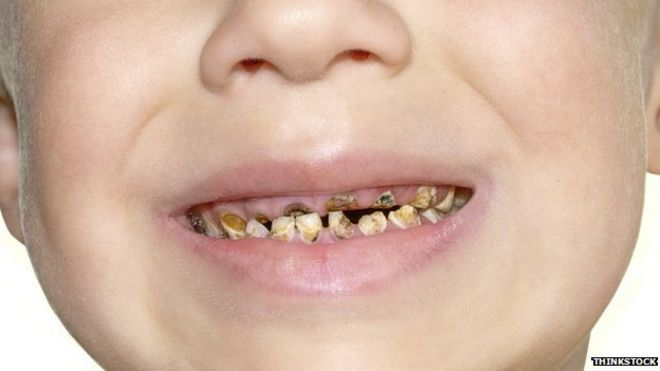 child tooth removal 'at crisis point', doctors warn - bbc news, Human Body