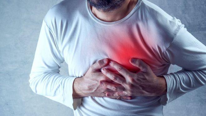 Foto de homem fingindo ataque de coração