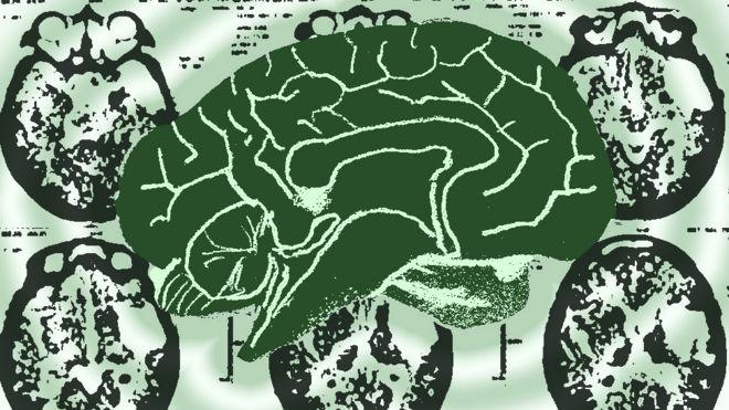 Desenho de cérebro