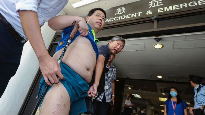 Hong Kong pro-democracy activist Howard Lam (L), who claims he was abducted, blindfolded and beaten by mainland China agents, shows his stapled thighs and injuries to the media in Hong Kong on 11 August 2017