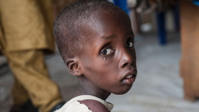 Thin, young African boy with flies on his eyes, looking into the camera from the side