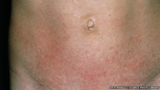 scarlet fever cases rise to weekly high in england - bbc news, Cephalic Vein