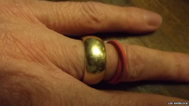 les sherlocks wedding ring - Lost Wedding Ring
