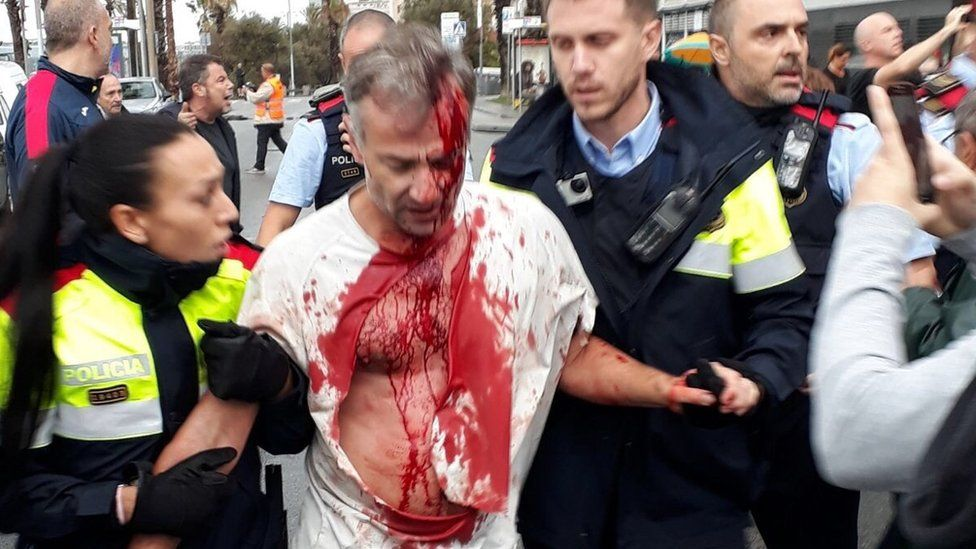 Очевидец в Барселоне прислал это фото корреспонденту Би-би-си Тому Барриджу - мужчина пострадал в стычках на избирательном участке