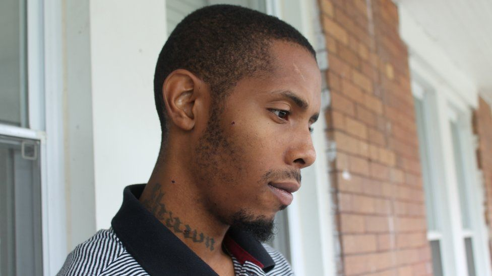 Devrone McKnight still has pieces of bullets embedded in his cheek and neck