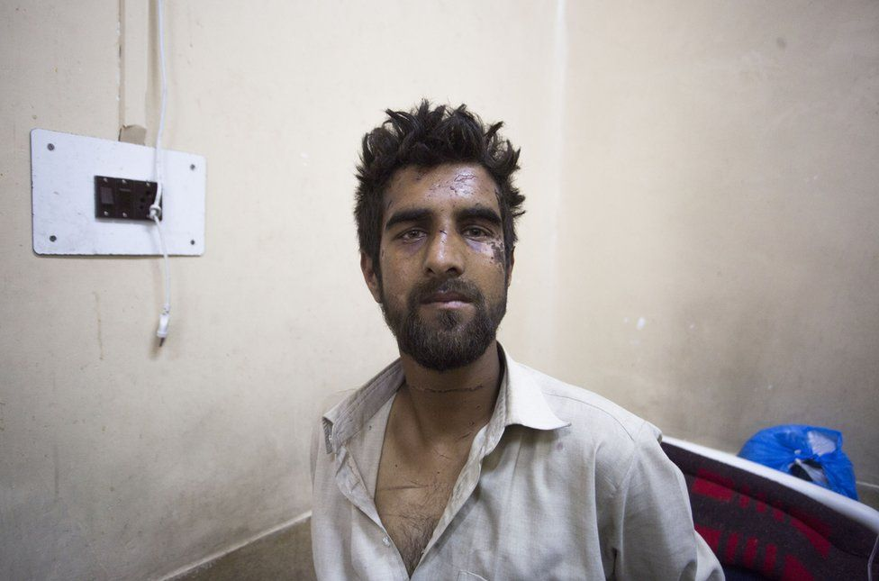 "Waseem Ahmad's face is bruised from a beating in which he was accused of being the ""braid chopper"""