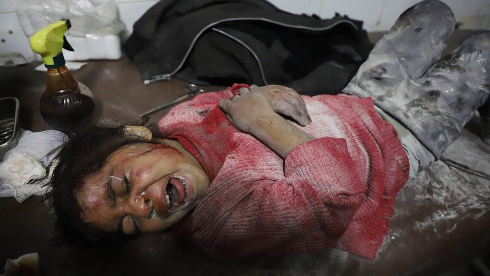 A Syrian girl cries as she waits for treatment as victims of reported regime air strikes on Hamouria, Saqba and Kafr Batna are brought to a make-shift hospital in the rebel-held enclave of Eastern Ghouta on March 7, 2018.